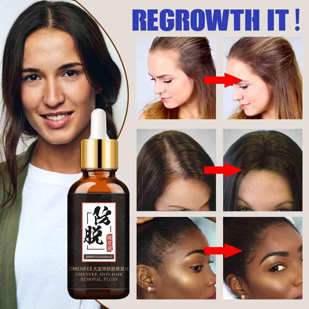 Fast Hair Growth Treatment Hair Essence Oil - Natural Extracts Liquid
