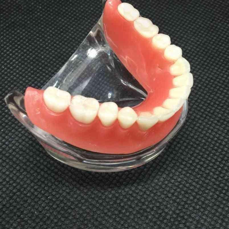 Mandibular Lower Teeth Model With Implant Restoration Tooth