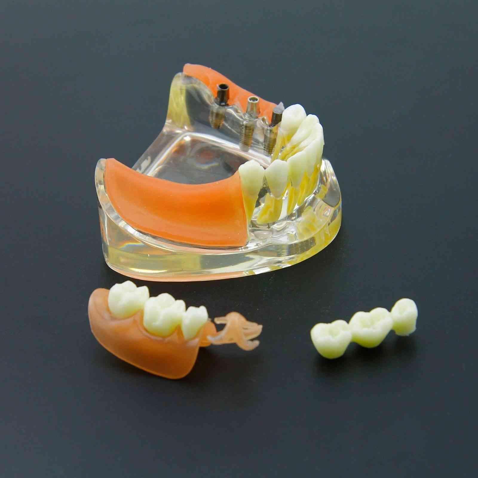 Dental Implant Restoration Teeth Model - Removable Bridge Denture Demo