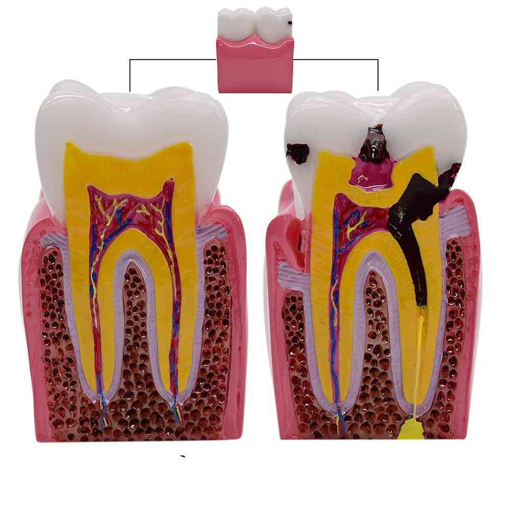1pc 6 Times Dental Caries Comparsion Models- Tooth Decay Model For Dental Study Teaching Dental Anatomy Education