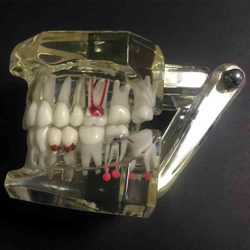 Dental Disease Teeth Implantation Model-detachable Design