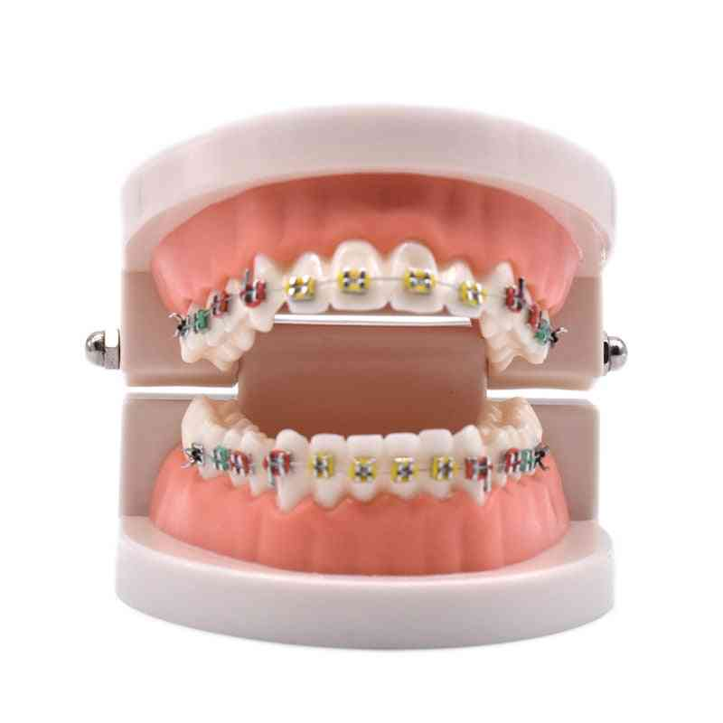 Dental Orthodontic Treatment Model With Ortho Metal Ceramic Bracket Arch Wire Buccal Tube Ligature Ties Dental Tools