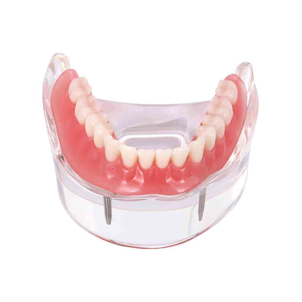 Dental Implant Restoration Teeth Model With Restoration Bridge
