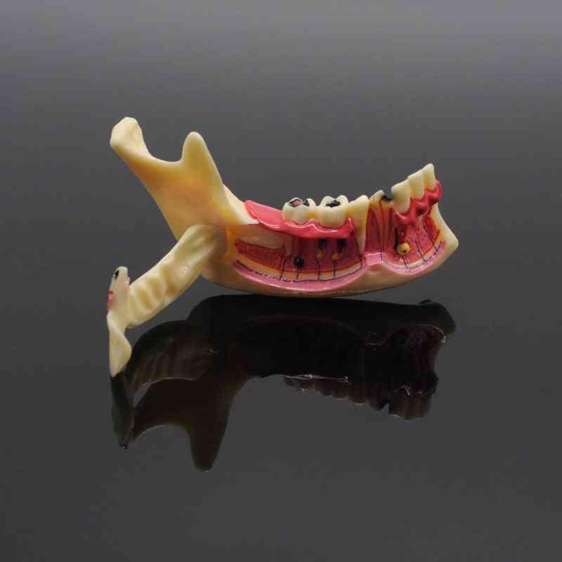 Dentistry Teaching Training Model, Dental Communication Model, Mandibular Model