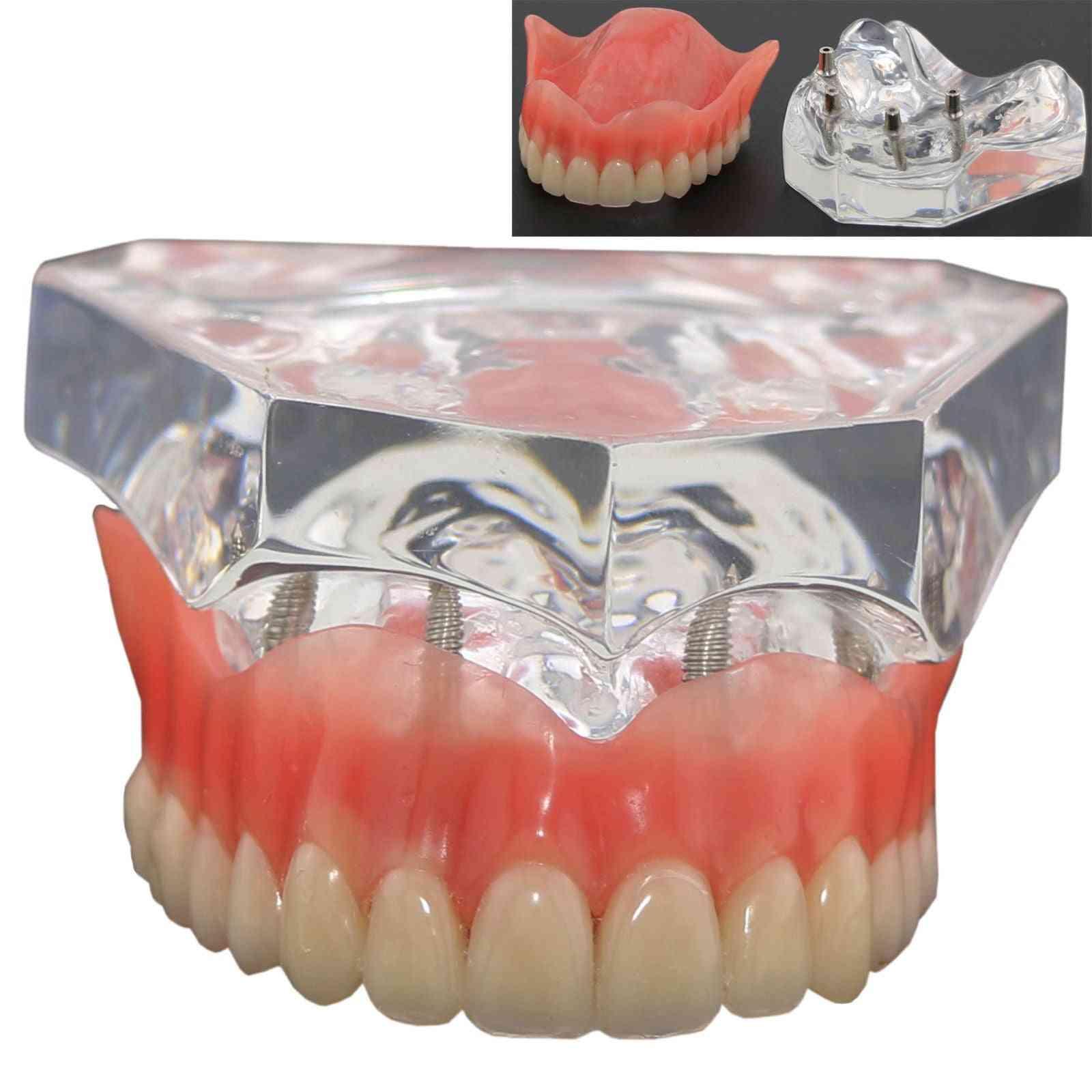 1pcs Dental Upper Overdenture Superior 4 Implants Demo Model, Teeth Model