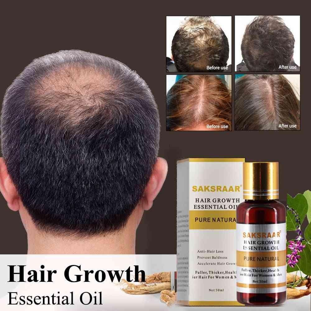 Hair Growth Essential Oils -essence Original Authentic 100% Hair Loss Liquid For Health Care Beauty Hair Growth
