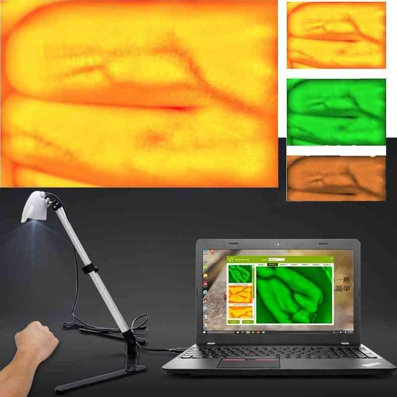 Children Vein Viewer - Display Infrared Lights Usb Camera Imaging