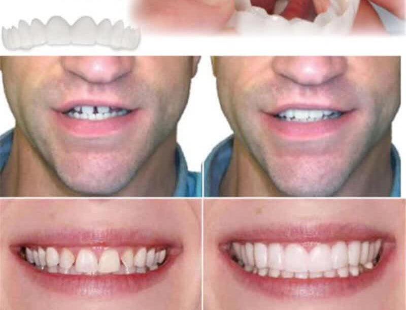 Perfect Smile Veneers Comfort Fit - Flex Denture Paste Braces