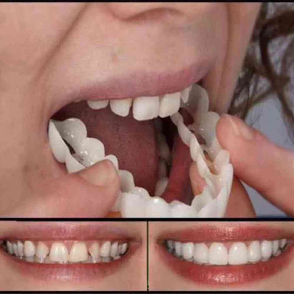 Silicone Fake, Teeth Upper False, Tooth Smile Cover, Plastic Whitening