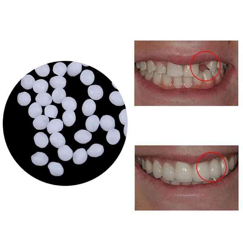 Tooth Repair Teeth & Gap Kit Set