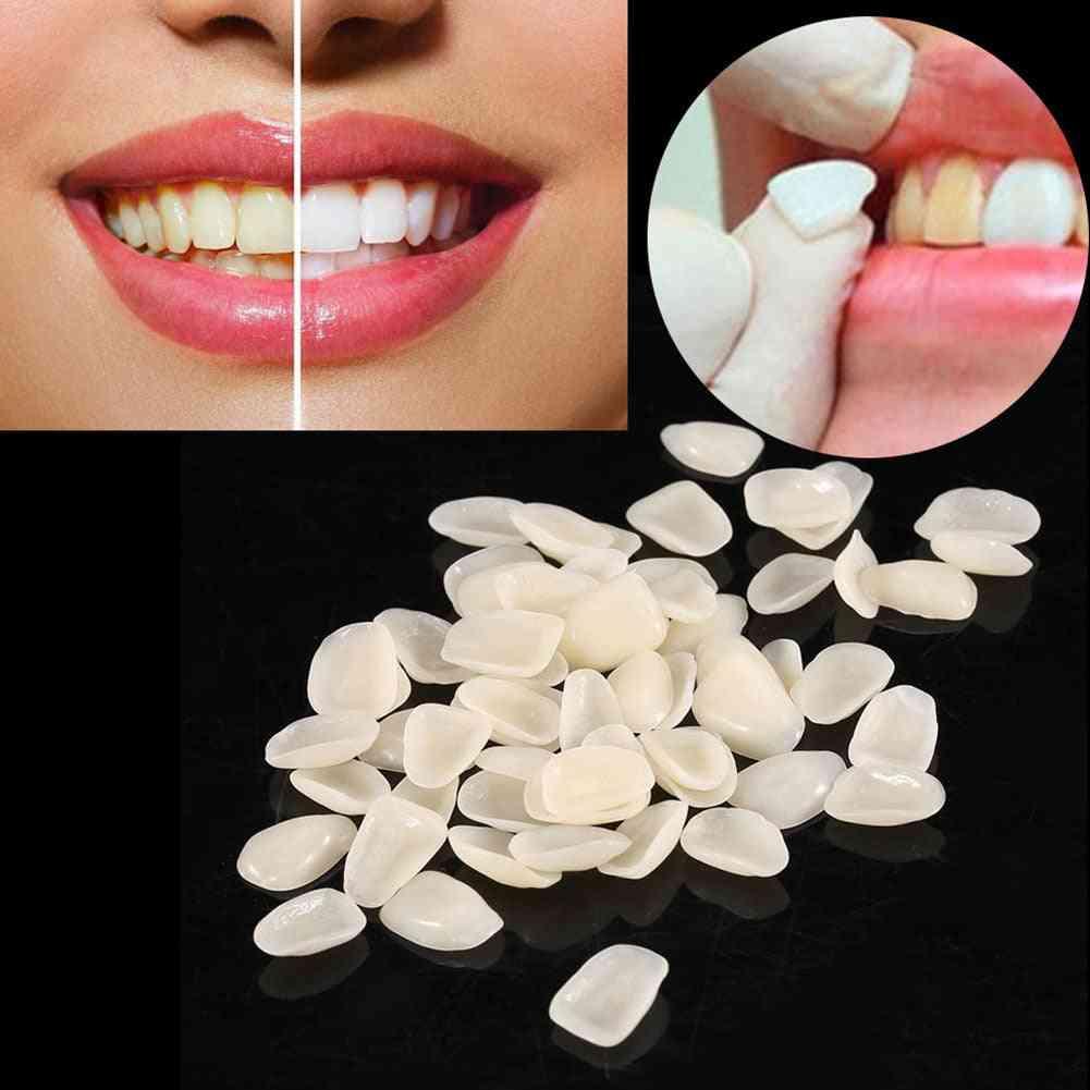 Dental Ultrathin- Composite Resin Veneers, Upper Anterior Teeth Restorative