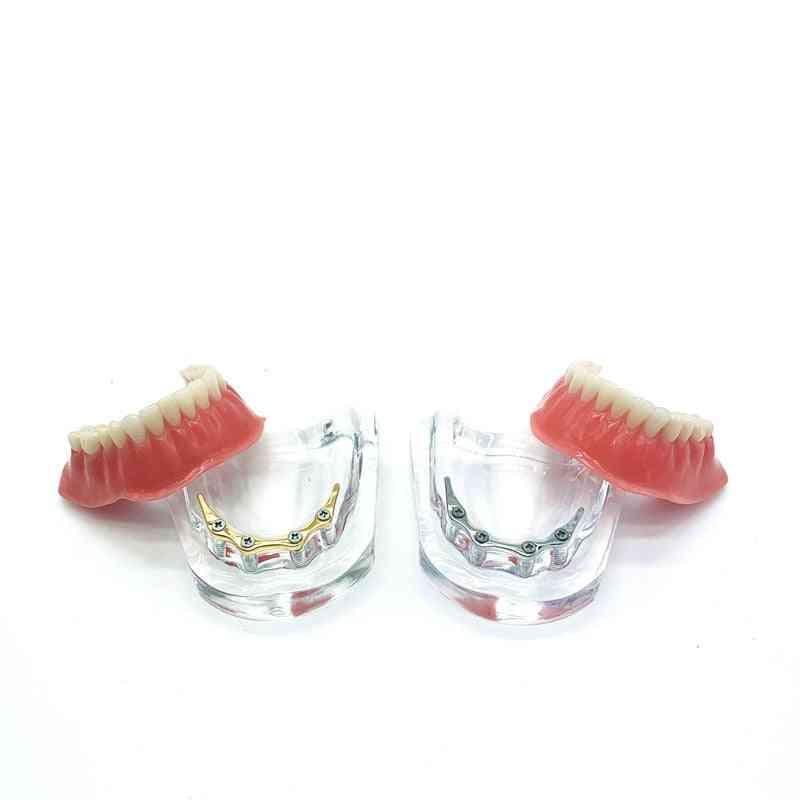 Teeth Implant With Golden Bar, Denture Teeth Mandibular, Teaching Model