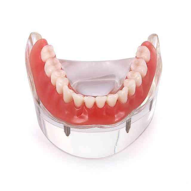 Dental Implant With Restoration Teeth Model
