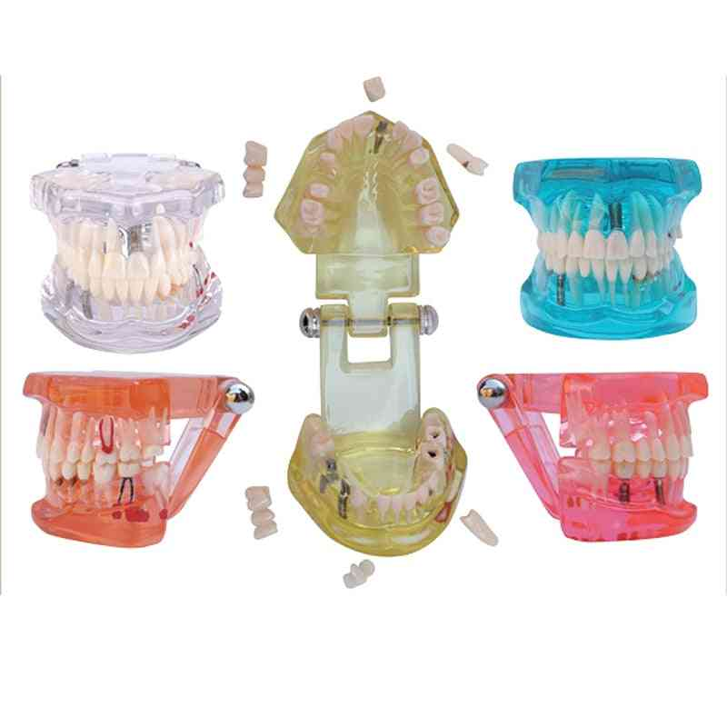 1pc Dental Teaching Study Model Standard Restoration