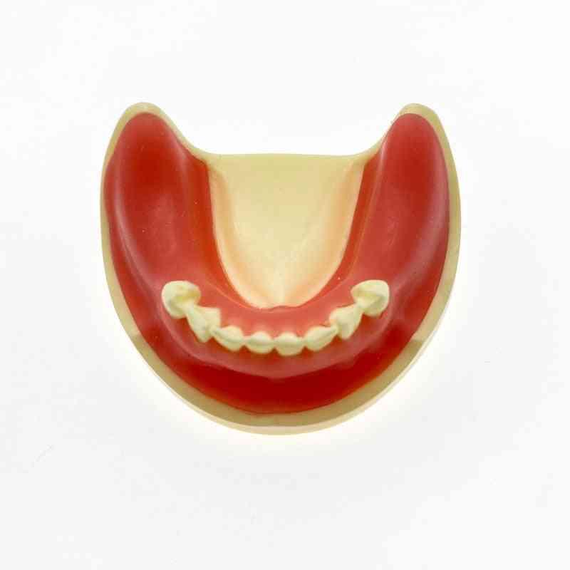 Teeth Model Dental Implant Model For Incision