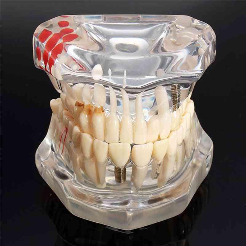 Implant Dental Disease Teeth Model With Restoration Bridge, Tooth Dentist For Medical Science,  Teaching Study Tool